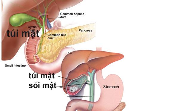 Triệu chứng âm thầm báo hiệu bệnh ung thư túi mật - ảnh 1