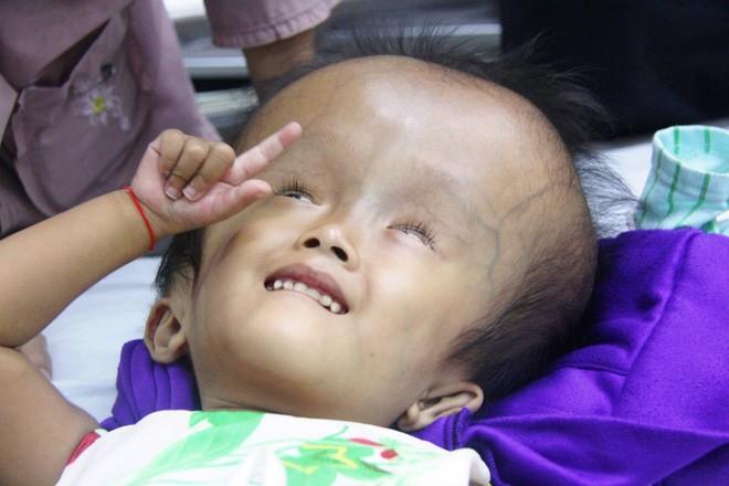 Xót cảnh bé gái 4 tuổi bị não úng thủy, đầu to gấp ba lần người thường mà bố mẹ nghèo không tiền chạy chữa - Ảnh 5.