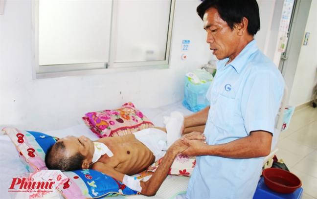 Bác sĩ đoán chết 100%, người đàn ông ở TP.HCM bất ngờ sống lại - ảnh 5