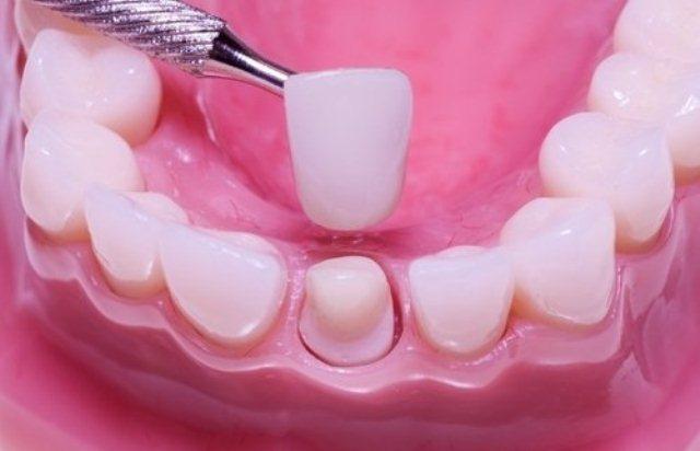 Bọc răng sứ thay đổi tướng mạo: Coi chừng viêm lợi, vỡ răng - Ảnh 2.