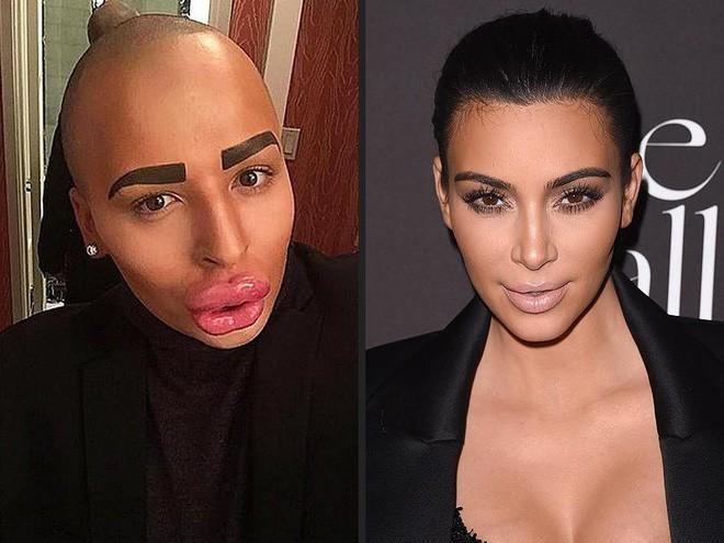 Bất chấp tất cả phẫu thuật cho giống thần tượng, người xinh đẹp tuyệt trần, người biến dạng kinh hoàng bị cả thiên hạ chê cười - Ảnh 5.
