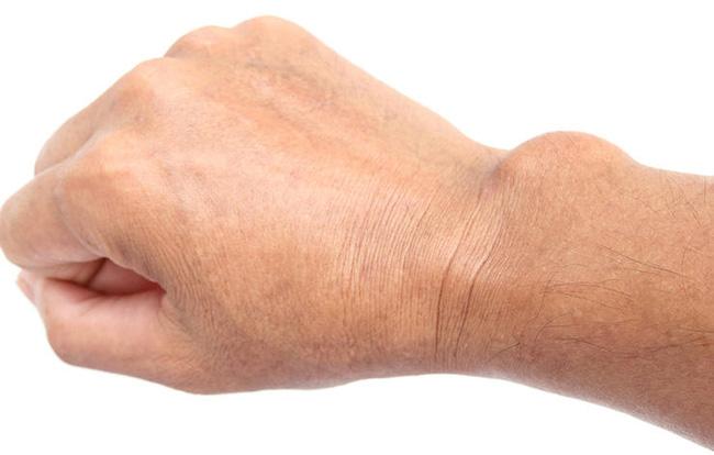 Triệu chứng tê bại ở tay không hẳn do thiếu canxi mà có thể xuất phát từ 10 nguyên nhân không ngờ - Ảnh 6.