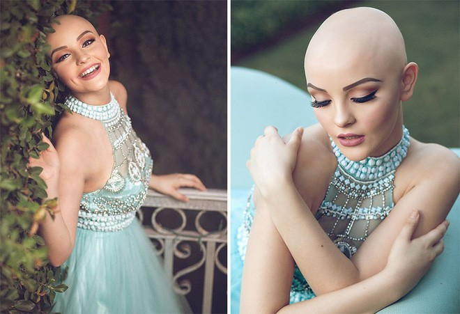 Cô gái 17 tuổi xinh như búp bê cắt trụi tóc để chụp ảnh, biết được sự thật ai cũng nể phục - Ảnh 7.