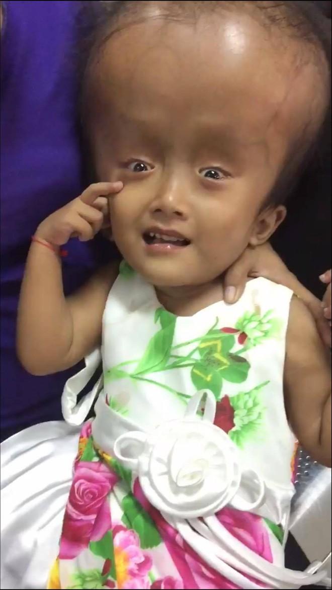 Xót cảnh bé gái 4 tuổi bị não úng thủy, đầu to gấp ba lần người thường mà bố mẹ nghèo không tiền chạy chữa - Ảnh 8.