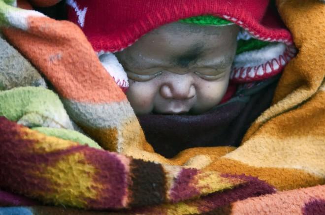 Cuộc sinh nở gian nan của những phụ nữ phải đi bộ suốt 9 ngày trời, trong giá buốt -35 độ mới đến được trạm xá - Ảnh 7.