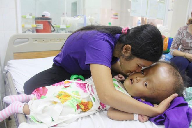 Xót cảnh bé gái 4 tuổi bị não úng thủy, đầu to gấp ba lần người thường mà bố mẹ nghèo không tiền chạy chữa - Ảnh 9.