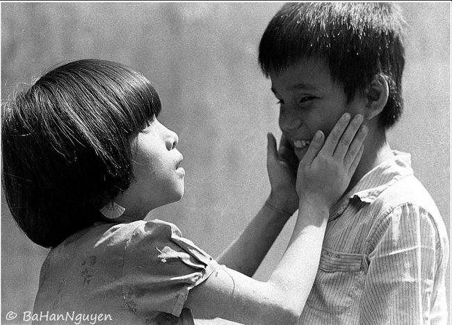 Chuyện của nhiếp ảnh gia 60 tuổi ở Sài Gòn được tái sinh sau 17 ca phẫu thuật vì bỏng lửa - Ảnh 9.