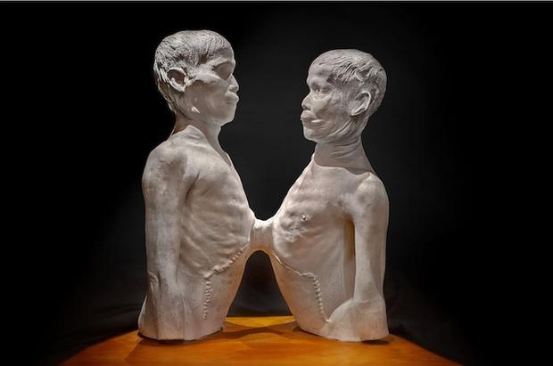 Ly kỳ đời sống của cặp song sinh dính liền thân vẫn lấy vợ, sinh tổng cộng 21 đứa con - Ảnh 9.