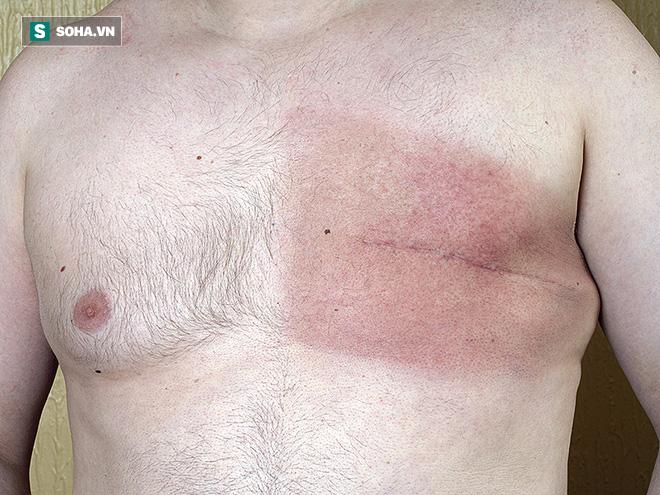 3 người đàn ông trong gia đình cùng mắc 1 loại ung thư: Báo động bệnh có gen di truyền - Ảnh 2.