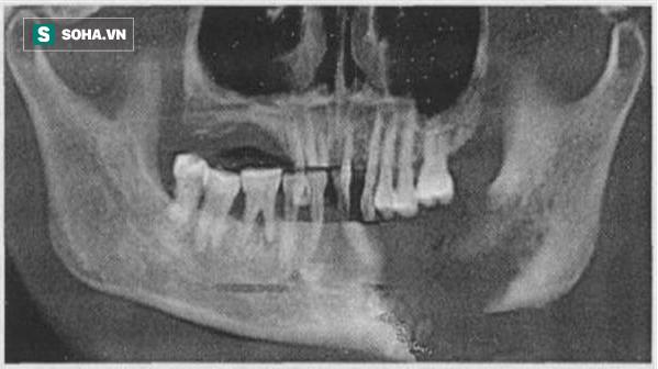 Cảnh báo: Bị đau răng chần chừ không đi khám, đến khi không chịu được thì đã hoại tử hàm - Ảnh 1.