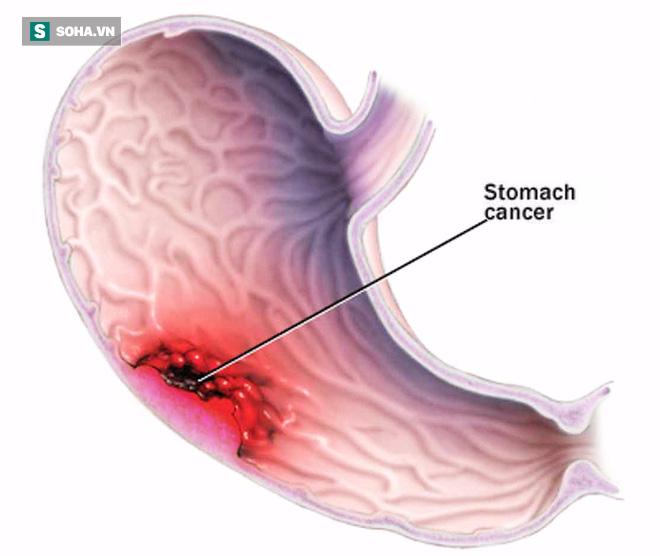 Đừng chờ đến lúc đau, 6 dấu hiệu phải đi khám ung thư dạ dày ngay đừng chậm trễ  - Ảnh 1.