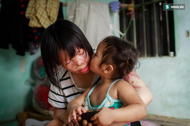 Cuộc sống hiện tại của Hoa hậu Thùy Dung bị chồng tẩm xăng đốt - Ảnh 11.