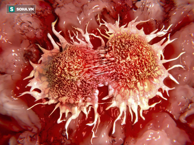Thần dược tỏi đen phòng chữa ung thư, chuyên gia ung thư tại Mỹ nói gì? - Ảnh 2.
