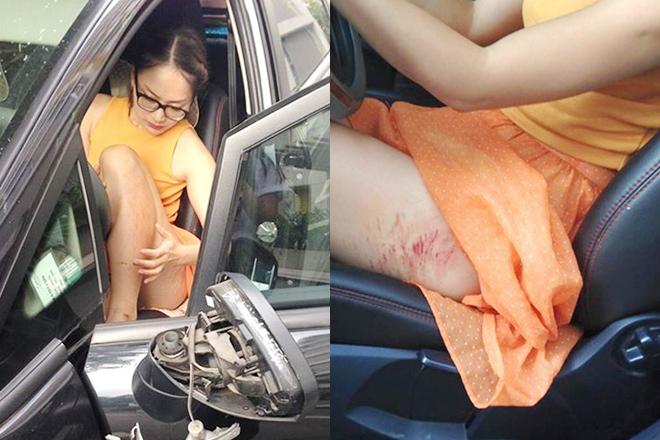 Sao Việt bị cướp dí dao, gây chấn thương sọ não khiến dư luận bức xúc - Ảnh 2.