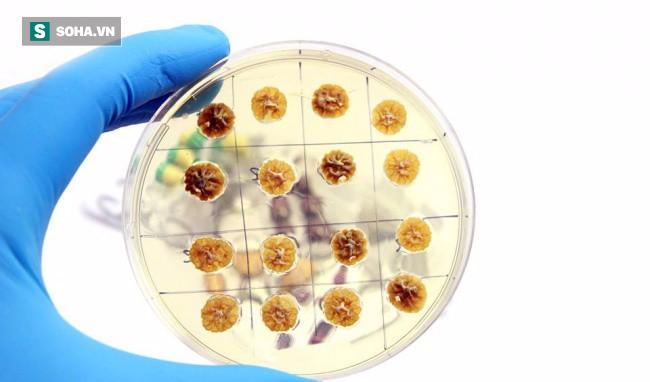 4 khuyến cáo dùng kháng sinh của WHO: Nên áp dụng ngay để không chết vì thiếu thuốc - Ảnh 2.