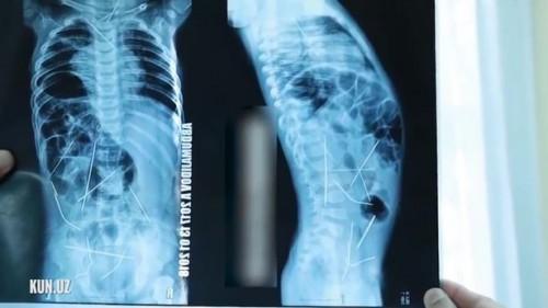 Bác sĩ sốc khi phát hiện 16 chiếc kim khâu trong người bé trai 11 tháng tuổi - ảnh 1