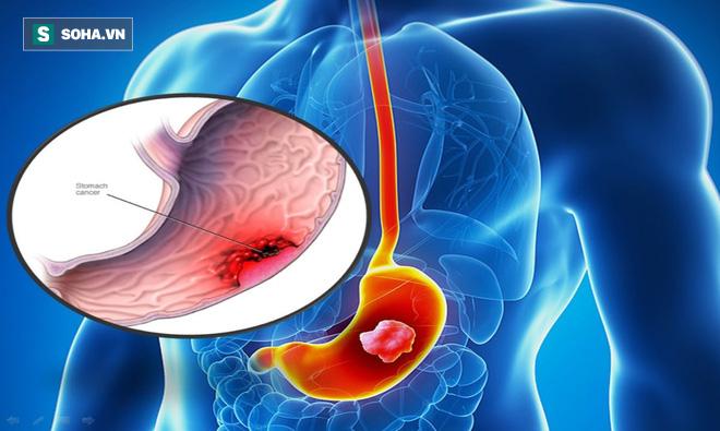 Ngừa ung thư dạ dày: Bác sĩ khuyên cắt bỏ toàn bộ dạ dày nếu bệnh nhân có dấu hiệu này - ảnh 1