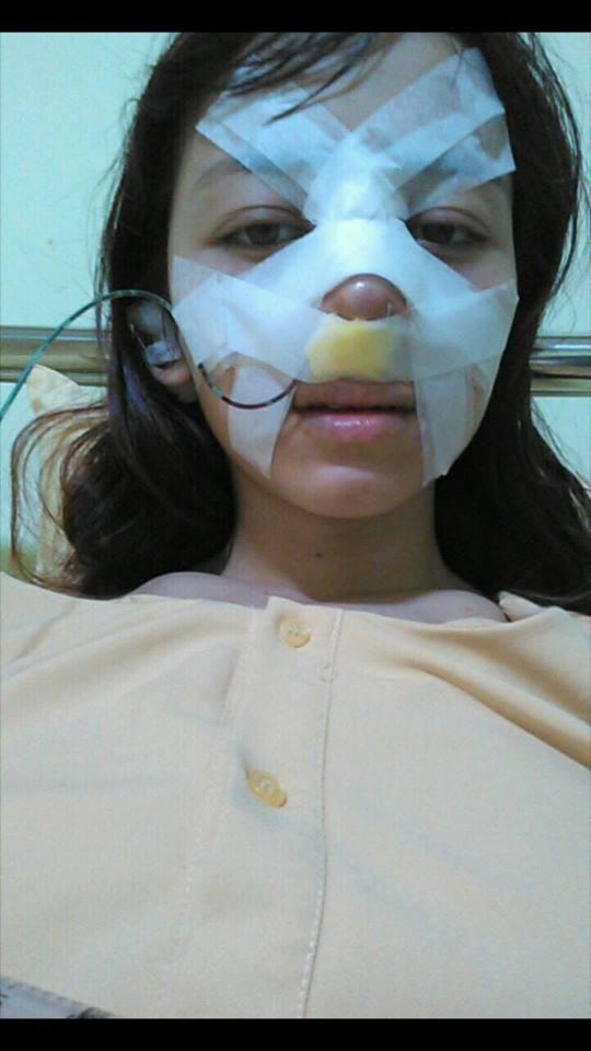 Cô gái chịu đau đớn 'chết đi sống lại' khi nâng mũi để sửa tướng - ảnh 2