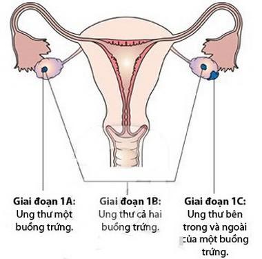 Cảnh báo sớm về ung thư buồng trứng - ảnh 1