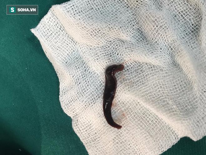Sinh vật dài 5cm ngoe nguẩy trong mũi, khiến bệnh nhân đau đầu, sổ mũi kéo dài - Ảnh 1.