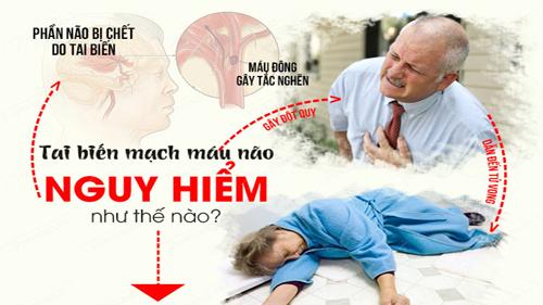 Đột quỵ cần được cấp cứu khẩn cấp: Những dấu hiệu báo động cần nắm rõ để xử trí kịp thời - Ảnh 2.