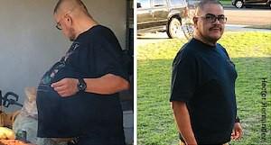 Ung thư tế bào mỡ: Những người có lớp mỡ bụng dày thật sự rất đáng lo ngại! - Ảnh 3.