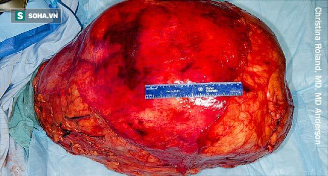 Ung thư tế bào mỡ: Những người có lớp mỡ bụng dày thật sự rất đáng lo ngại! - Ảnh 1.