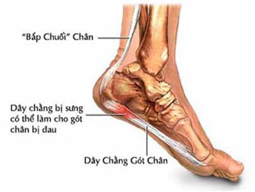 Sự thật sau những cơn đau ở gót chân - Ảnh 1.