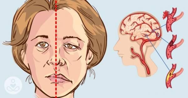 Phục hồi chức năng sau tai biến mạch máu não: Gian truân và cần sự kiên nhẫn từ cả người mắc lẫn gia đình - Ảnh 1.
