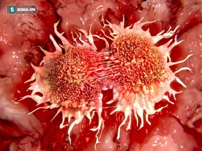 Không chỉ ngừa ung thư, ăn tỏi sống mang lại 5 thay đổi thần kỳ: Bạn nên tận dụng sớm! - Ảnh 1.