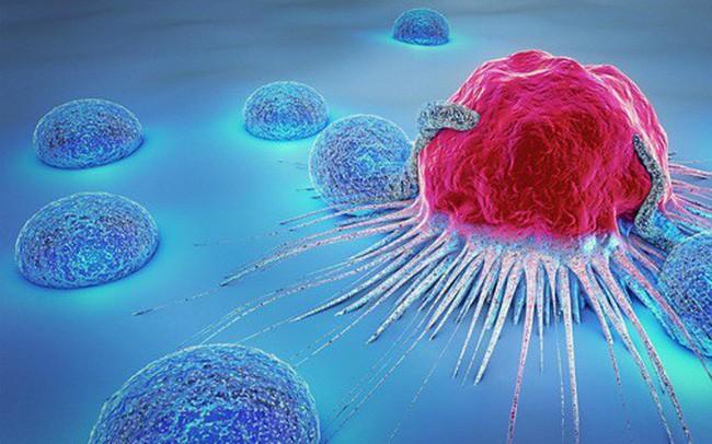 Dấu hiệu cảnh báo sớm 13 bệnh ung thư: Dù chỉ có 1 dấu hiệu cũng nên khám ngay - Ảnh 2.