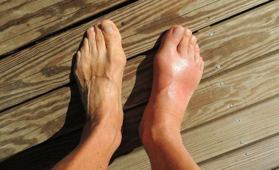 Tình trạng trẻ hóa bệnh gout và xu hướng hỗ trợ từ các thảo dược thiên nhiên ở Việt Nam - Ảnh 1.