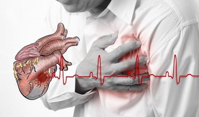 Bất ngờ mất mạng vì suy tim do huyết áp cao không điều trị - Ảnh 2.