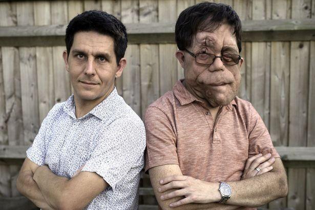 Khó tin rằng họ là hai anh em sinh đôi từng giống nhau như hai giọt nước.