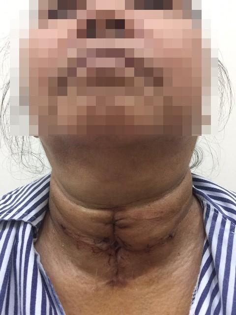 U tuyến giáp khổng lồ khiến cụ bà khó thở suýt chết, phải nhập viện cấp cứu - Ảnh 1.