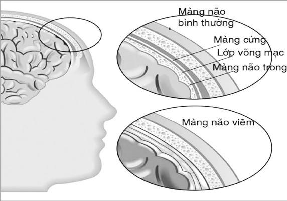 Cảnh giác bệnh viêm màng não do giun lươn - Ảnh 1.