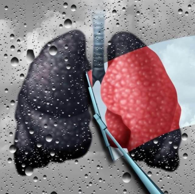 5 thực phẩm được ví là máy hút bụi cho phổi: Thường xuyên ăn, phổi sẽ được dọn sạch sẽ - Ảnh 1.