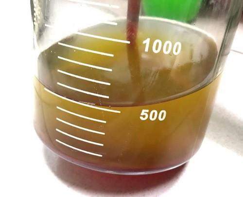 Hy hữu: Sau ngã bác sĩ chọc hút 2 lít dịch màu trắng như sữa ở phổi - Ảnh 1.