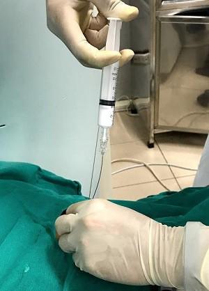 Hy hữu: Sau ngã bác sĩ chọc hút 2 lít dịch màu trắng như sữa ở phổi - Ảnh 3.