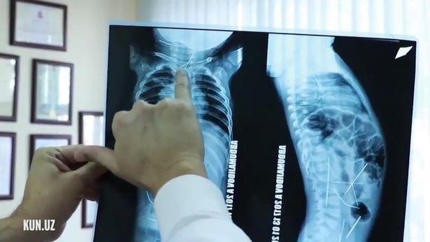 Uzbekistan: Con sốt cao, tiểu tiện khó khăn, mẹ đưa đến bệnh viện và ngã quỵ khi nhìn thấy hình chụp X-quang - Ảnh 1.