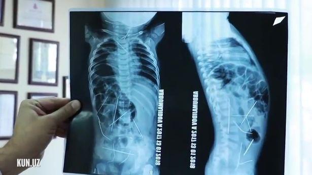 Uzbekistan: Con sốt cao, tiểu tiện khó khăn, mẹ đưa đến bệnh viện và ngã quỵ khi nhìn thấy hình chụp X-quang - Ảnh 3.