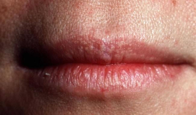 Những thủ phạm làm xuất hiện mụn rộp trên môi bạn cần phải nắm rõ - Ảnh 5.