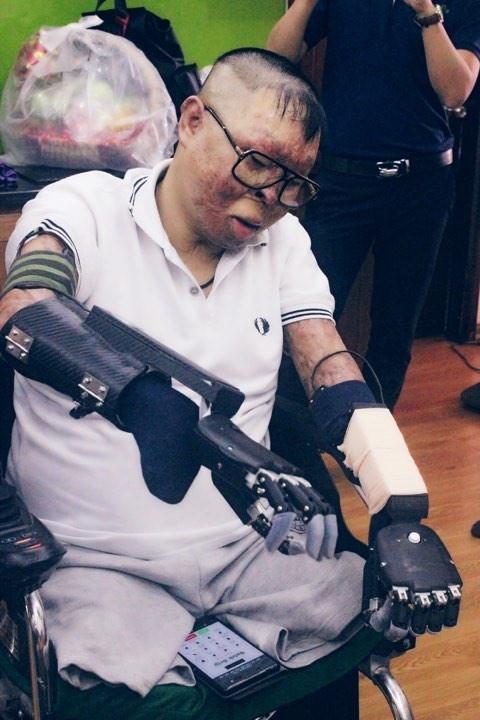 Cái tết ý nghĩa nhất của chiến sĩ sống sót vụ trực thăng rơi sau khi được lắp tay giả - Ảnh 2.