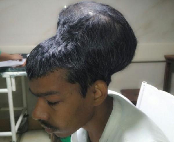Người đàn ông mang khối u não có kích cỡ to hơn cả đầu - Ảnh 1.