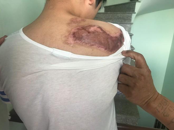 Cậu bé 16 tuổi sống sót sau vụ cháy xưởng bánh kẹo khiến 8 người tử vong ở Hà Nội bây giờ ra sao - Ảnh 1.
