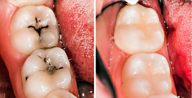 8 mẹo vặt hữu ích giúp bạn luôn nói không với bệnh sâu răng - Ảnh 5.