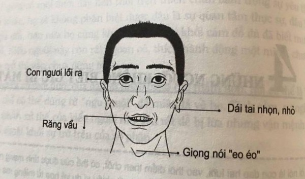Nhân tướng học: Những đặc điểm xấu trên gương mặt đàn ông có tính trăng hoa, nhiều chuyện - Ảnh 2.
