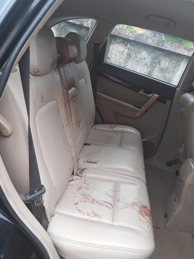 Sự tử tế tiếp nối chỉ trong một câu chuyện: Chở người bị thương đi cấp cứu đến nỗi máu dính đầy ghế, tài xế được người dân rửa xe miễn phí - Ảnh 3.