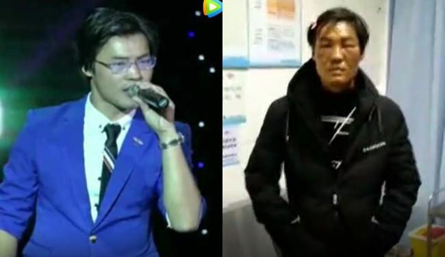 Gối sưởi phát nổ trong đêm, nam ca sĩ có nguy cơ bị hủy hoại sự nghiệp sau khi mặt bị bỏng nghiêm trọng - Ảnh 5.