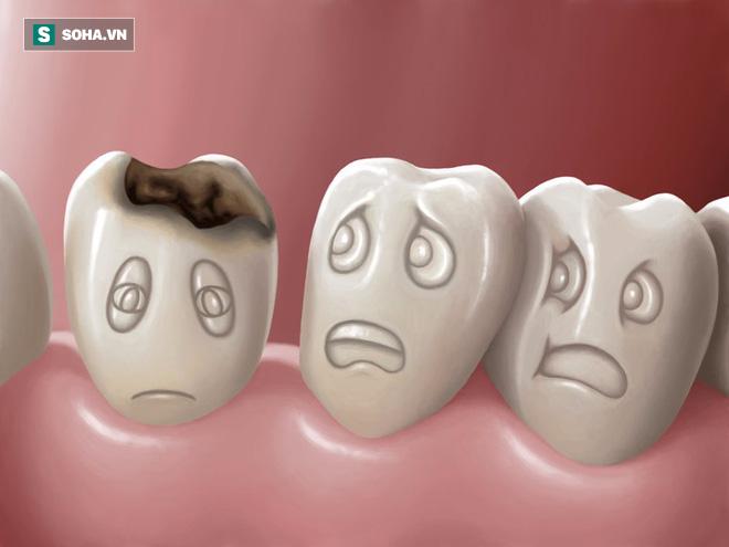 Phương pháp chữa sâu răng 100% tự nhiên rất dễ áp dụng tại nhà  - Ảnh 1.